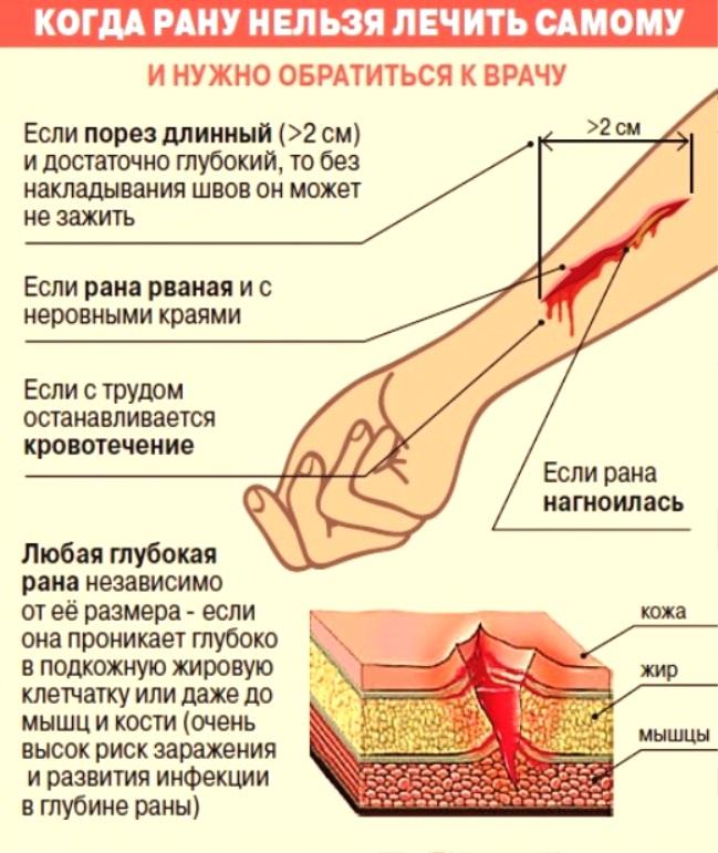 Как лечить глубокую гнойную рану